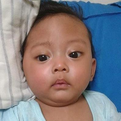 Myelomeningocele Repair and VP Shunt for baby Austine