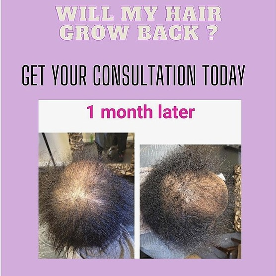 @maneattractionz Form For Certified Hair Loss / Holistic Health  Services Link Thumbnail | Linktree