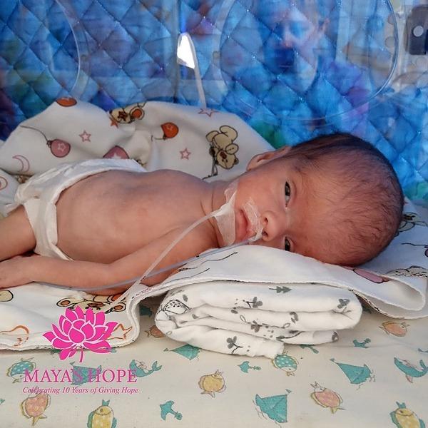 @mayashopefoundation Shunt Surgery for Masha Link Thumbnail | Linktree
