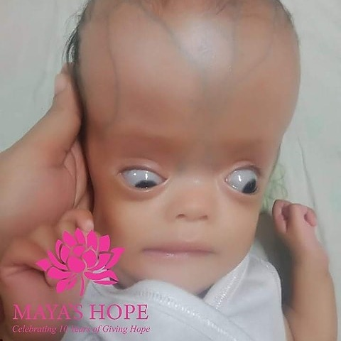 Surgery and ICU stay for Baby Jade