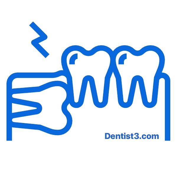 Wisdom Tooth Removal (Surgery) Special Price
