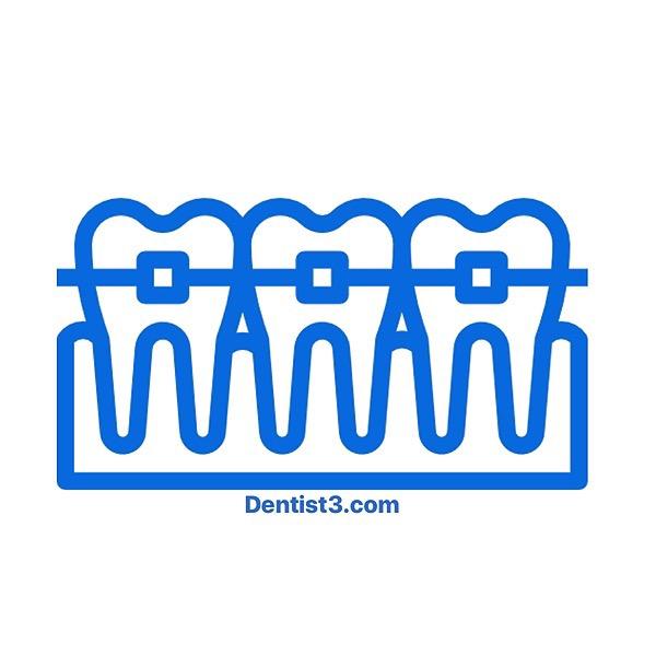@Dentist3Rawang PROMO BRACES [LATEST] - RM 4XXX nett , Material Qualiti diimport Dari Itali Link Thumbnail | Linktree