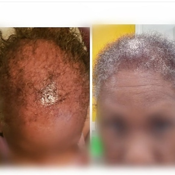 @maneattractionz Regrow Your Hair Back Now, CLICK HERE!!! Link Thumbnail   Linktree